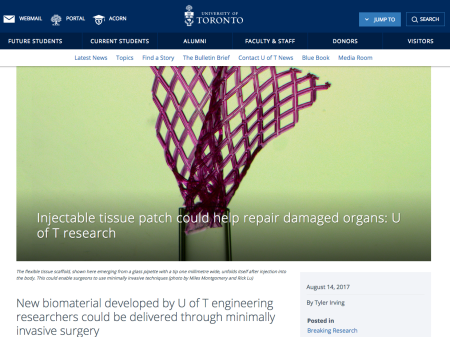 Screen Shot 2017-08-25 at 9.56.43 AM - New biomaterial developed by U of T engineering researchers could be delivered through minimally invasive surgery